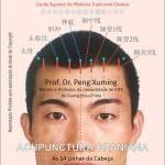 Acupunctura Craniana